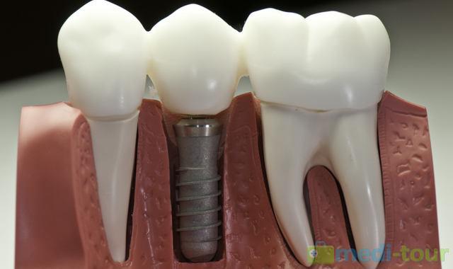 Implanty zębowe - mocowanie