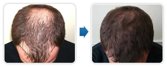 Efekty przed i po przeszczepie włosów