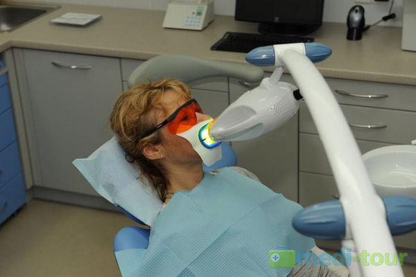 Wybielanie zębów lampą u dentysty