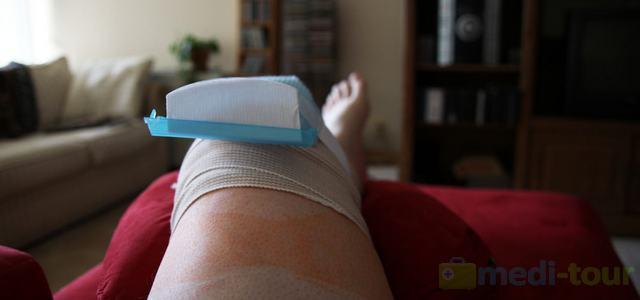ACL - rehabilitacja