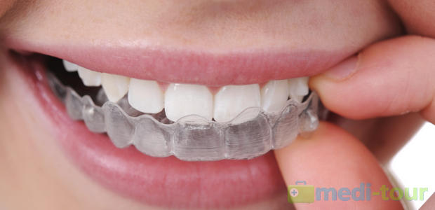 Aparat ortodontyczny (Clear Aligner, Invisalign)