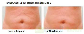 Brzuch - efekt przed i po mezoterapii bezigłowej NNM Lipo Kontour