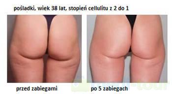 Pośladki - efekt przed i po mezoterapii bezigłowej NNM Lipo Kontour
