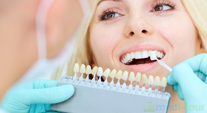 Ile kosztuje implant zęba