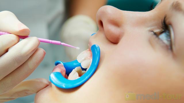 Lakierowanie - fluoryzacja zębów