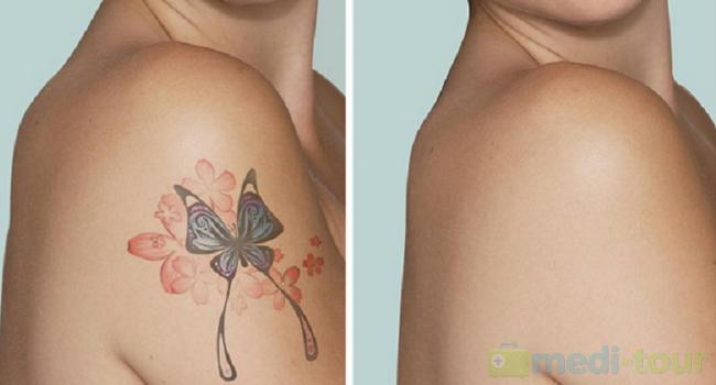 Laserowe usuwanie tatuażu efekty przed i po