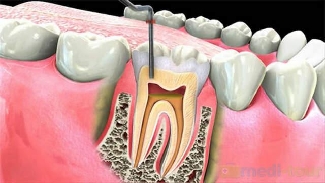 Leczenie kanałowe - endodontyczne