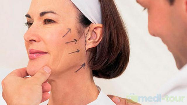 Lifting twarzy metodą SMAS