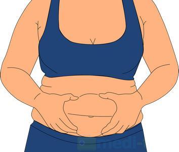 Liposukcja co warto wiedziec