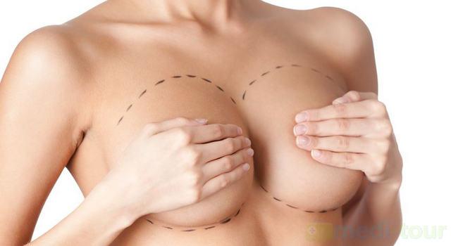 Operacja powiększania piersi
