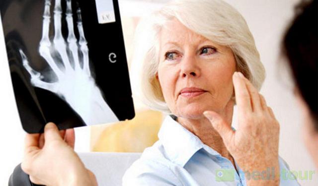 Meody leczenia reumatyzmu