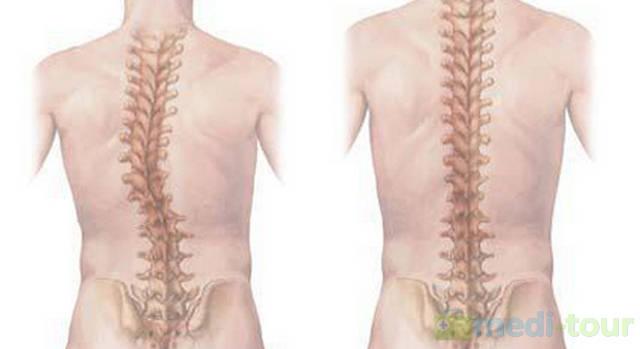 Skolioza - skrzywienie kręgosłupa