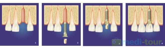Zabieg wszczepienia implantu