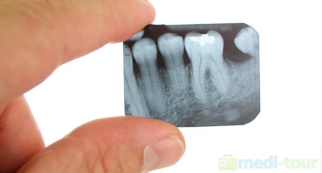 Zęby mądrości rentgen