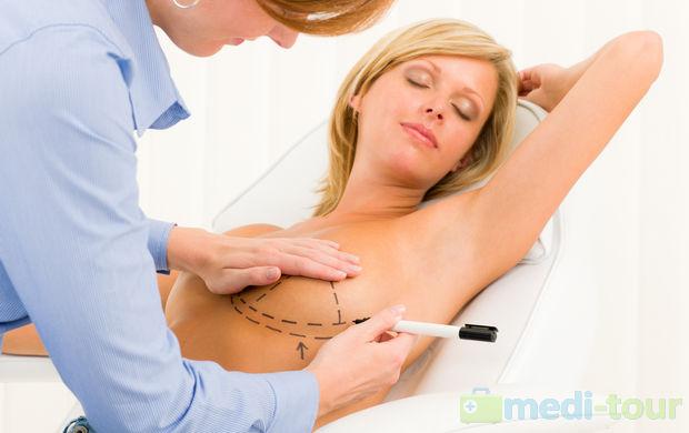 Zmiana kształtu piersi po ciąży o operacja plastyczna piersi