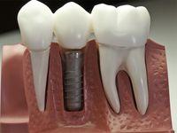 Implanty zębowe (stomatologiczne)